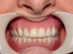 Dentures AFTER 1