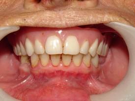 Dentures AFTER 2