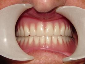 Dentures AFTER 3