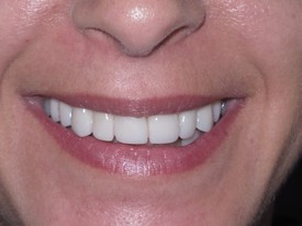 Porcelain Veneers AFTER 2