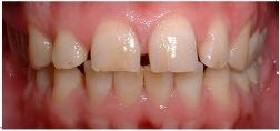 Porcelain Veneers BEFORE 1