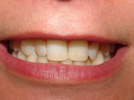 Porcelain Veneers BEFORE 2