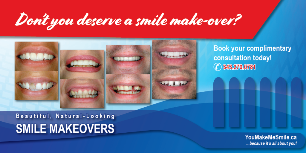 Smile makeover trenton belleville