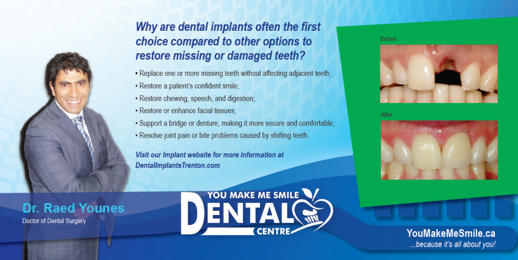 Dental Implants Belleville Trenton