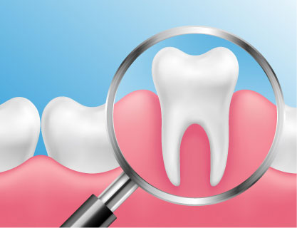 Pinhole Surgery Dental Services in Belleville and Trenton