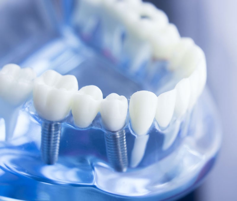 A featured website image for dental implants in trenton of close up shot of a dental implants