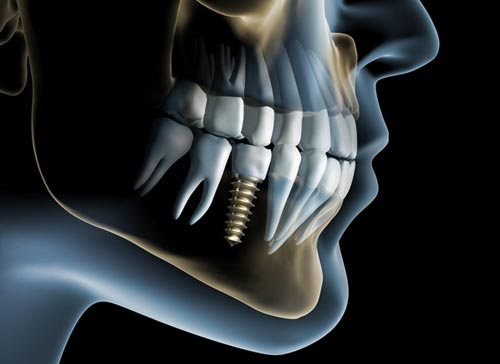 A featured website image for dental implants in trenton featuring an xray image of a dental implant