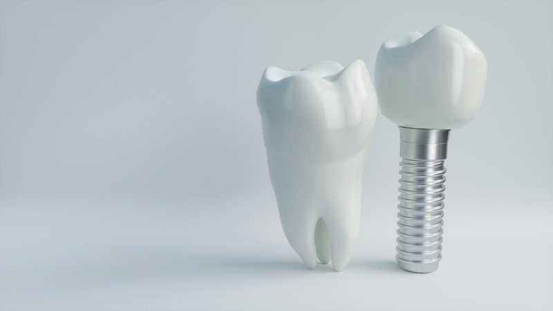 A featured website image for dental implants in trenton featuring an example of a dental implant