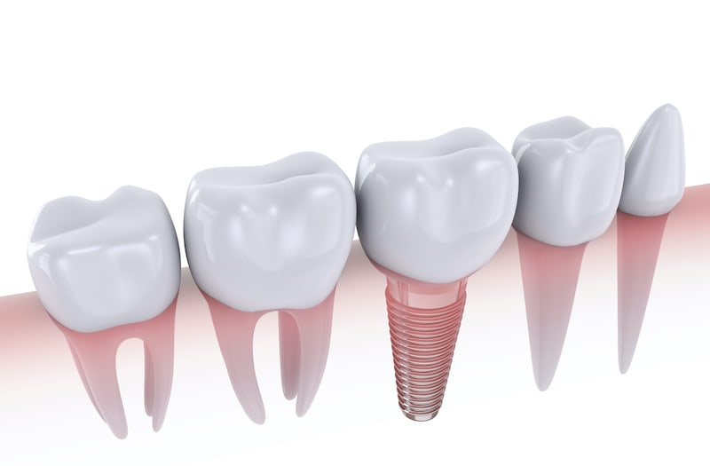 a picture of dental implants in Trenton